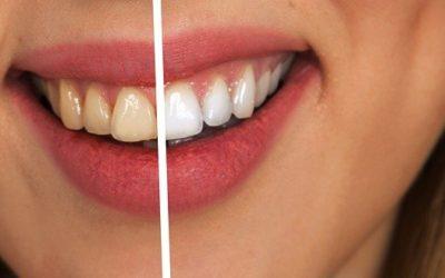 ¿Se pueden poner carillas dentales sin tallar el diente?