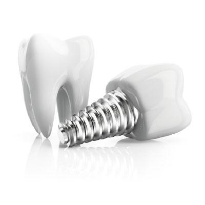 Implantes Dentales - San Sebastián de los Reyes
