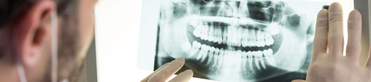 Implantes dentales en pacientes con poco hueso