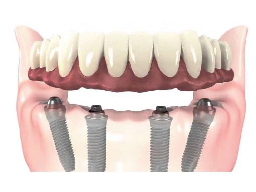 Prótesis Fija Híbrida sobre implantes